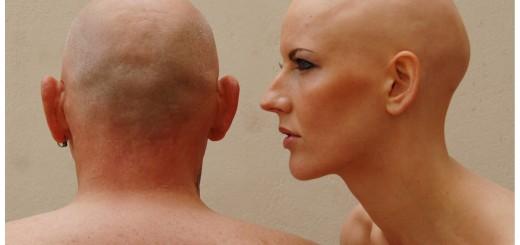 alopecia general